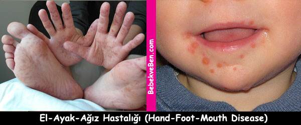 El-Ayak-Ağız Hastalığı (Hand-Foot-Mouth Disease)