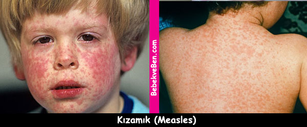 Kızamık (Measles)
